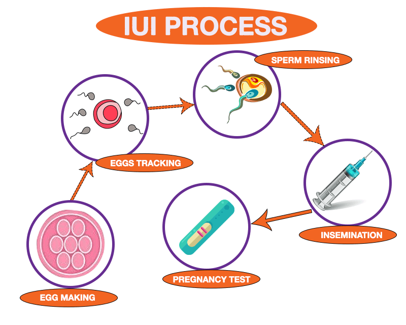 http://fertilityclinicmumbai.com/wp-content/uploads/2018/09/IUI-PROCESS-png.png