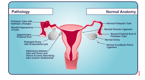 laparoscopy for infertility